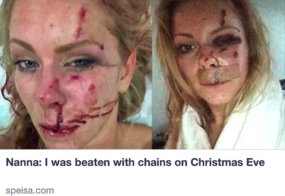 On Christmas Eve (a coincidence, I'M SURE) his Danish woman was beaten with chains by Muslim migrants--who laughed about it in court.